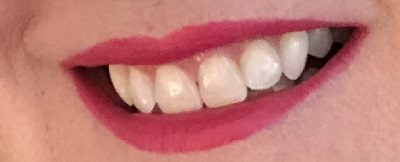 Smile Brilliant At Home Teeth Whitening: Win Yours!